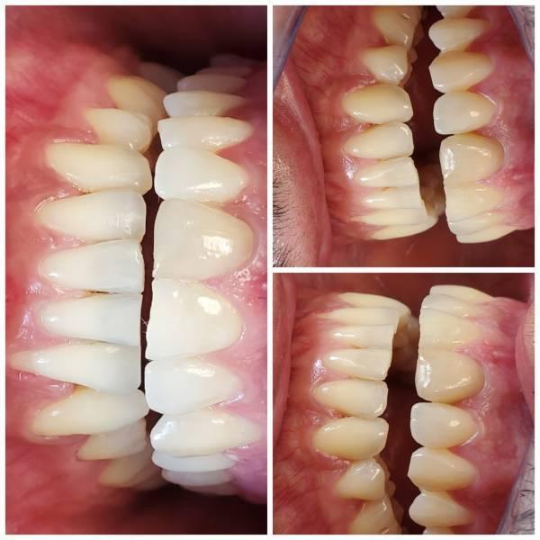 درمانی بی ضرر برای دندان ها